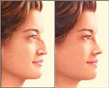 Comparativa de rinoplastia